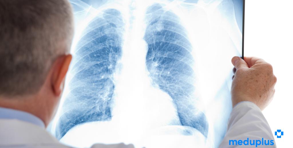 Behandlung der multiresistenten Tuberkulose